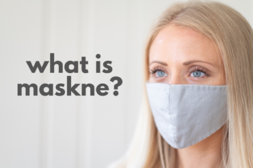 "How to treat ""maskne""?"